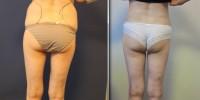 липосакция до и после