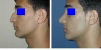 до и после операции ринопластики израиль